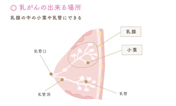 乳がんの出来る場所
